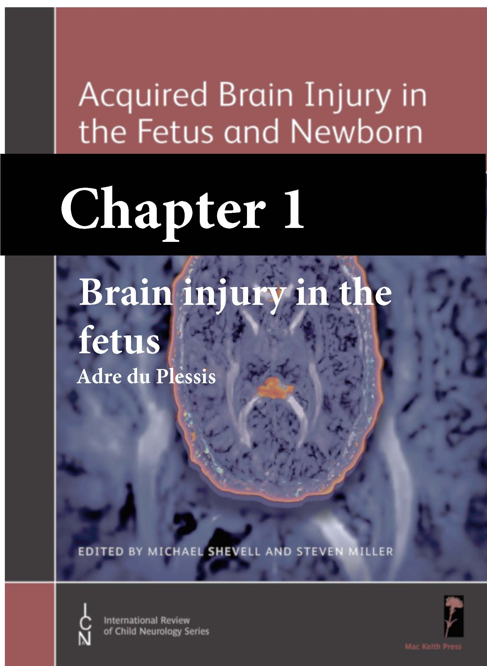 Acquired Brain Injury in the Fetus & Newborn, Shevell & Miller, Chapter 1 cover