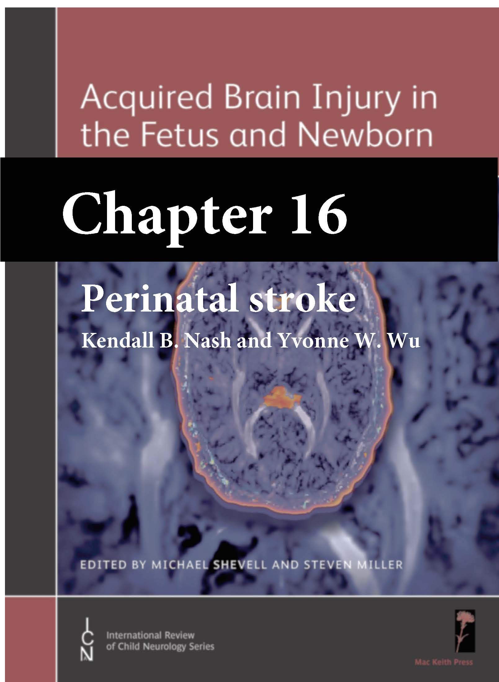 Acquired Brain Injury in the Fetus and Newborn, Shevell, Chapter 16 cover