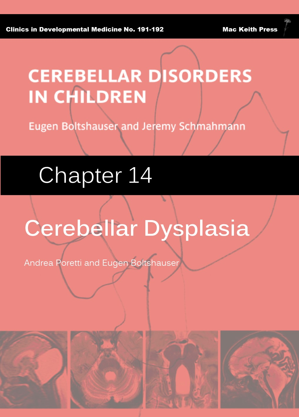 Cerebellar Dysplasia - Cerebellar Disorders in Children (Chapter 14) COVER