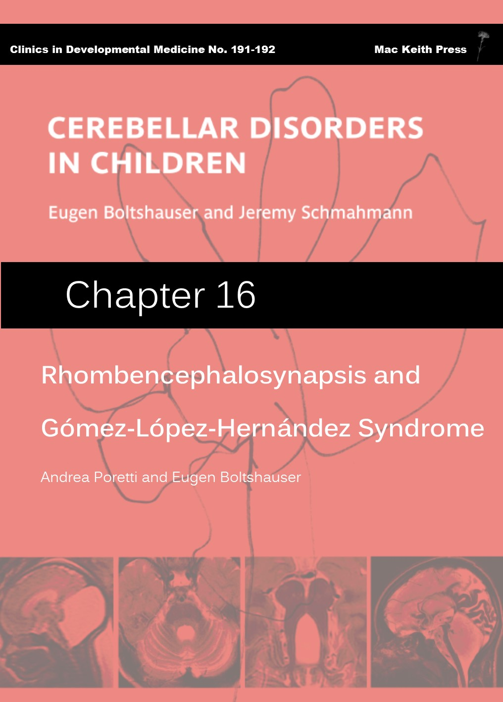 Rhombencephalosynapsis and Gomez-Lopez-Hernandez Syndrome - Cerebellar Disorders in Children (Chapter 16) COVER
