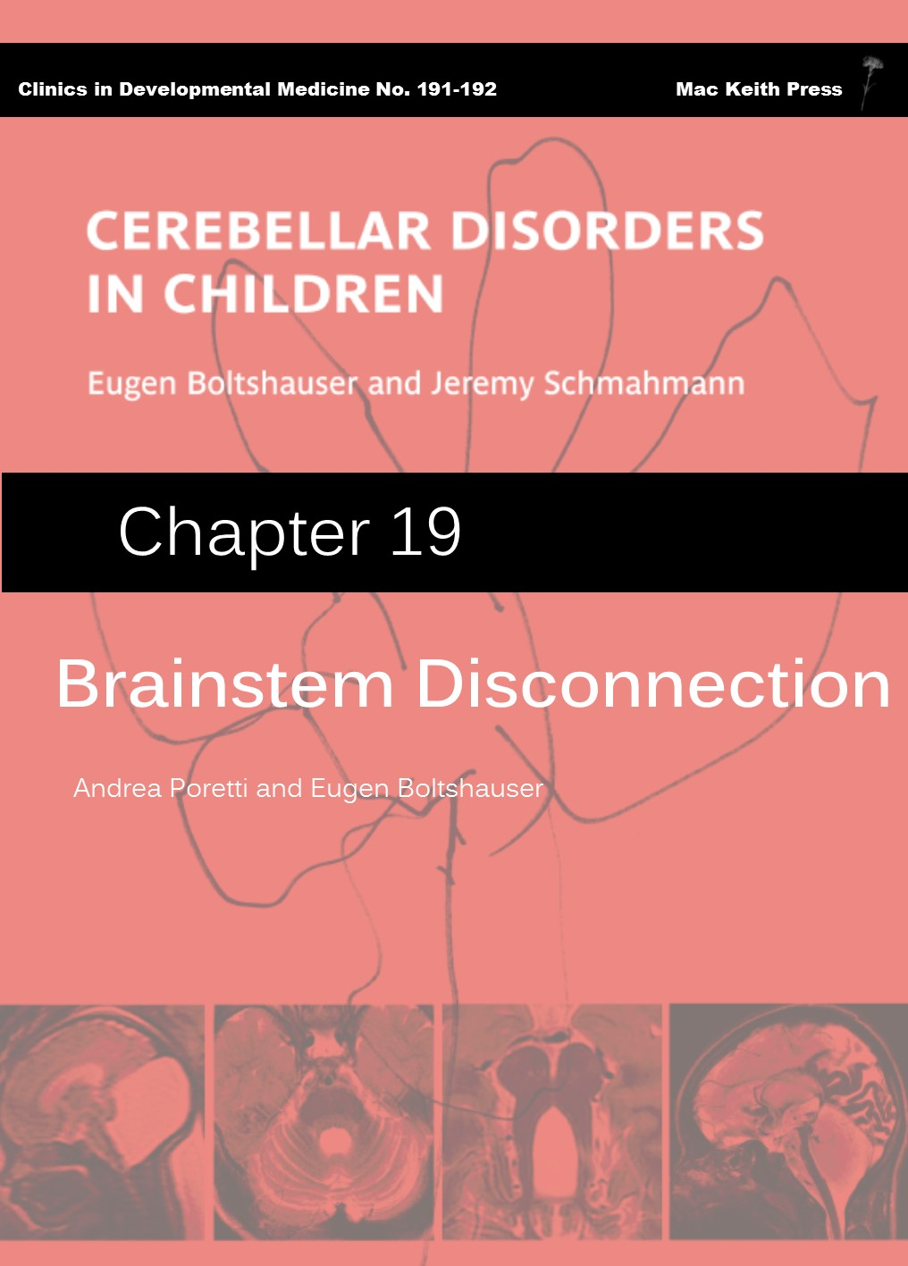 Brainstem Disconnection- Cerebellar Disorders in Children (Chapter 19) COVER