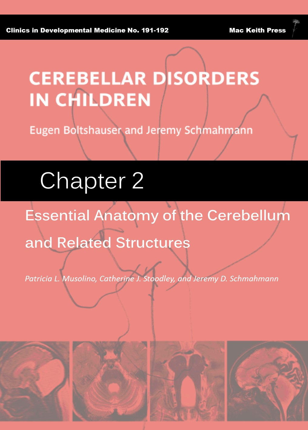 Essential Anatomy Of The Cerebellum And Related Structures
