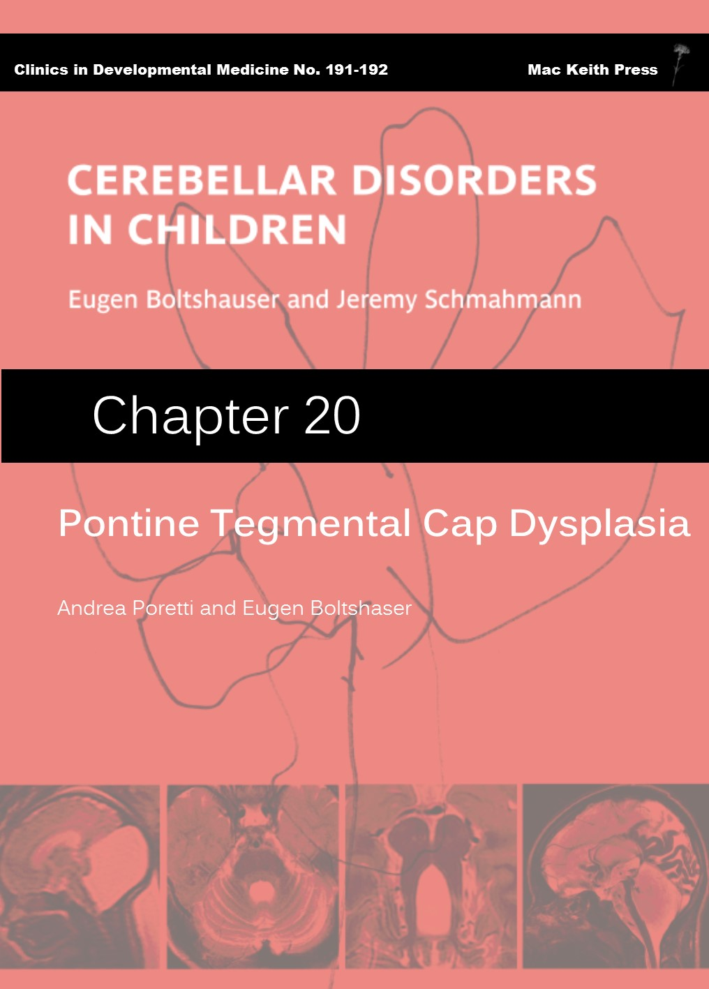 Pontine Tegmental Cap Dysplasia - Cerebellar Disorders in Children (Chapter 20) COVER