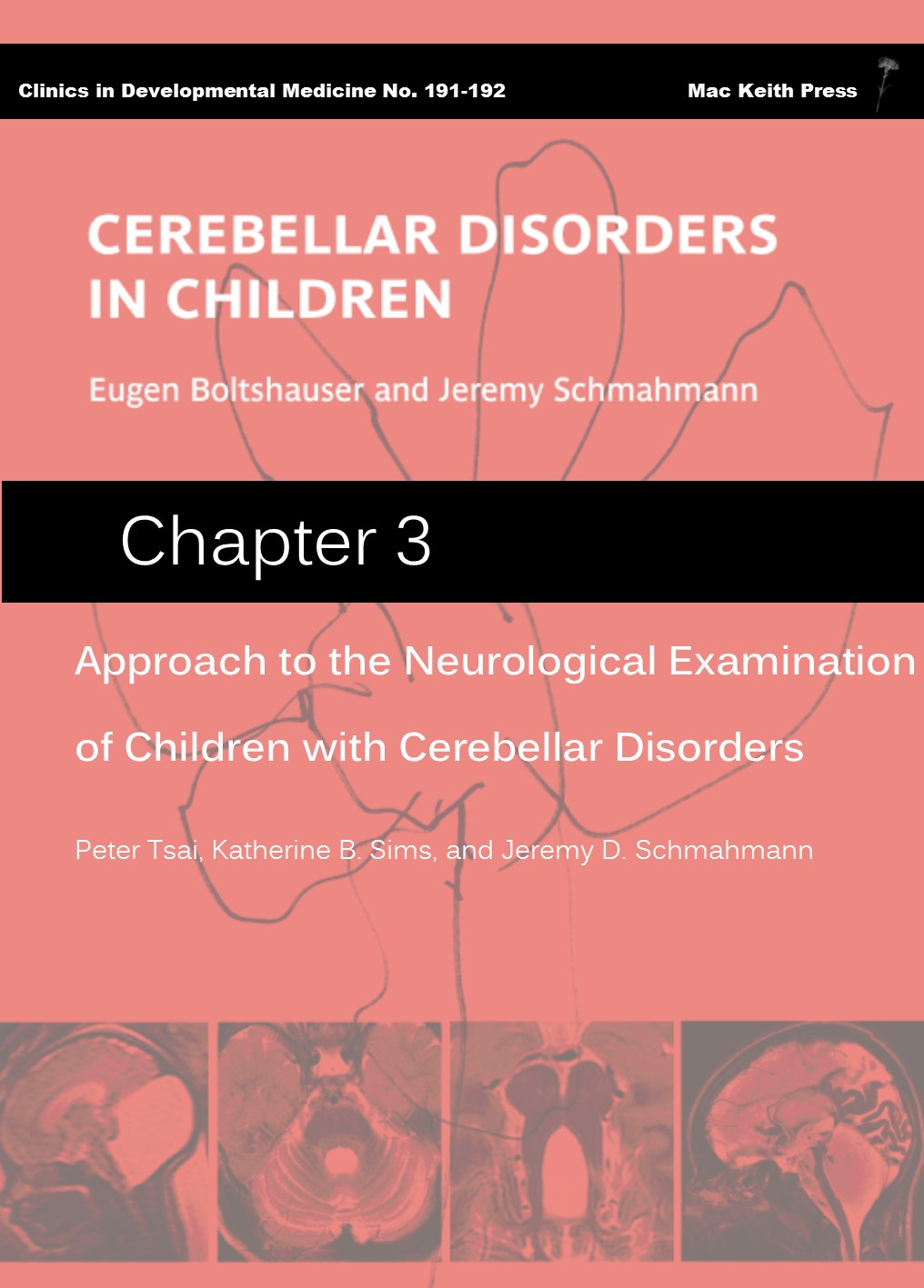 Approach to the Neurological Examination of Children with Cerebellar Disorders (chapter 3) - Cerebellar Disorders in Children COVER IMAGE