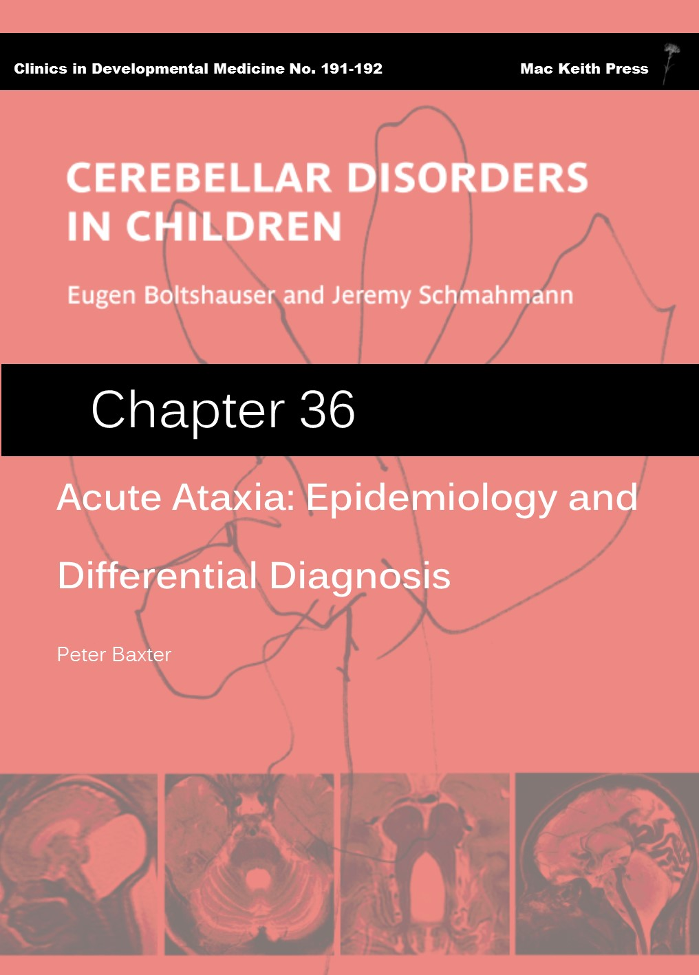 Acute Ataxia: Epidemiology and Differential Diagnosis - Cerebellar Disorders in Children (Chapter 36) COVER