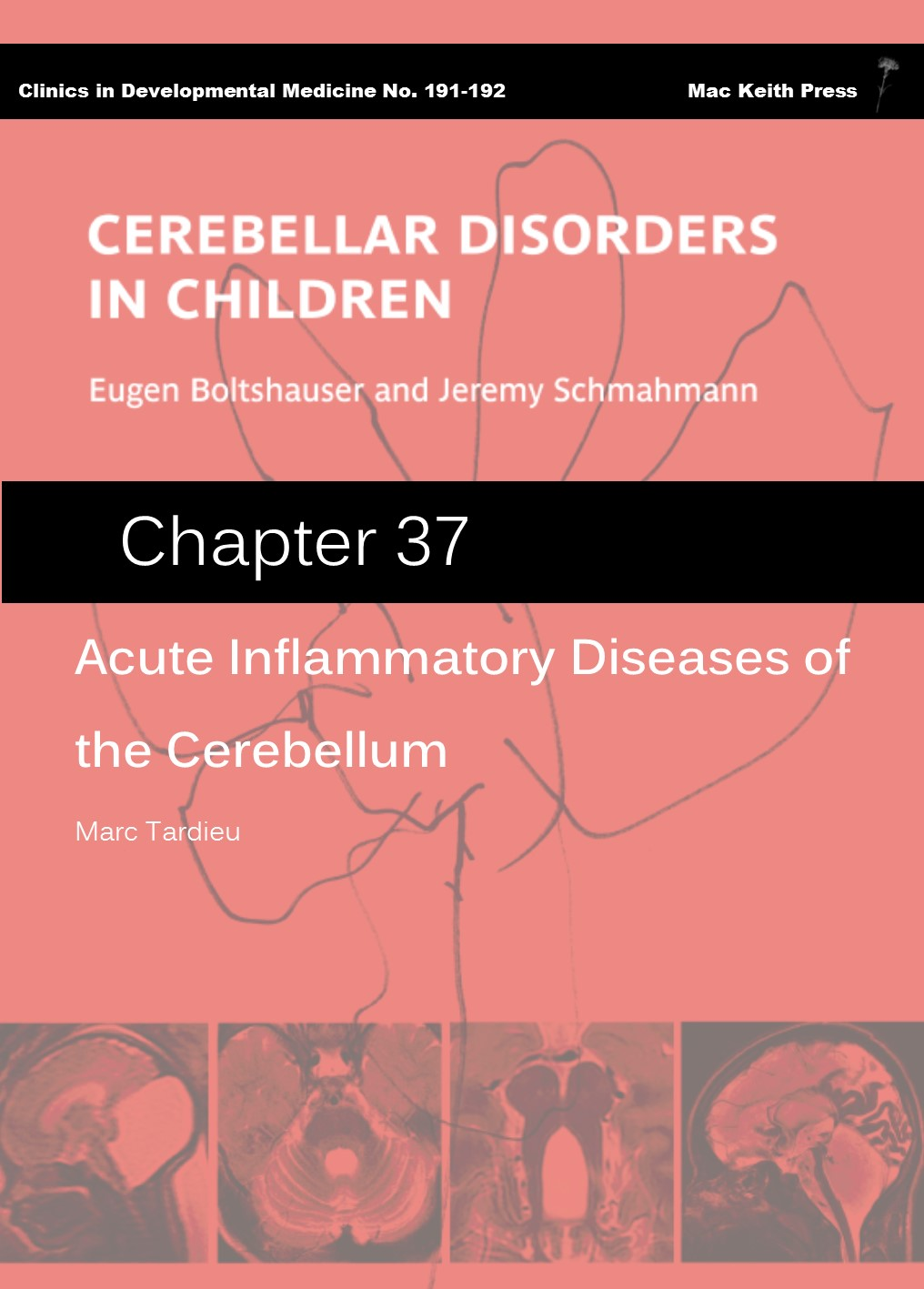 Acute Inflammatory Diseases of the Cerebellum - Cerebellar Disorders in Children (Chapter 37) COVER