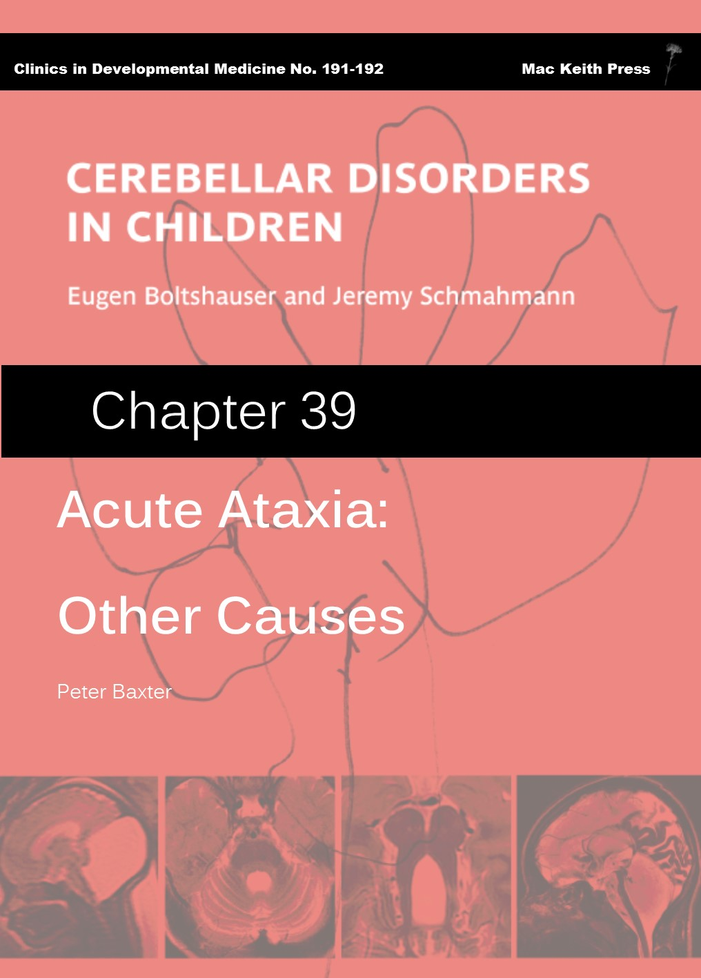 Acute Ataxia: Other Causes - Cerebellar Disorders in Children (Chapter 39) COVER
