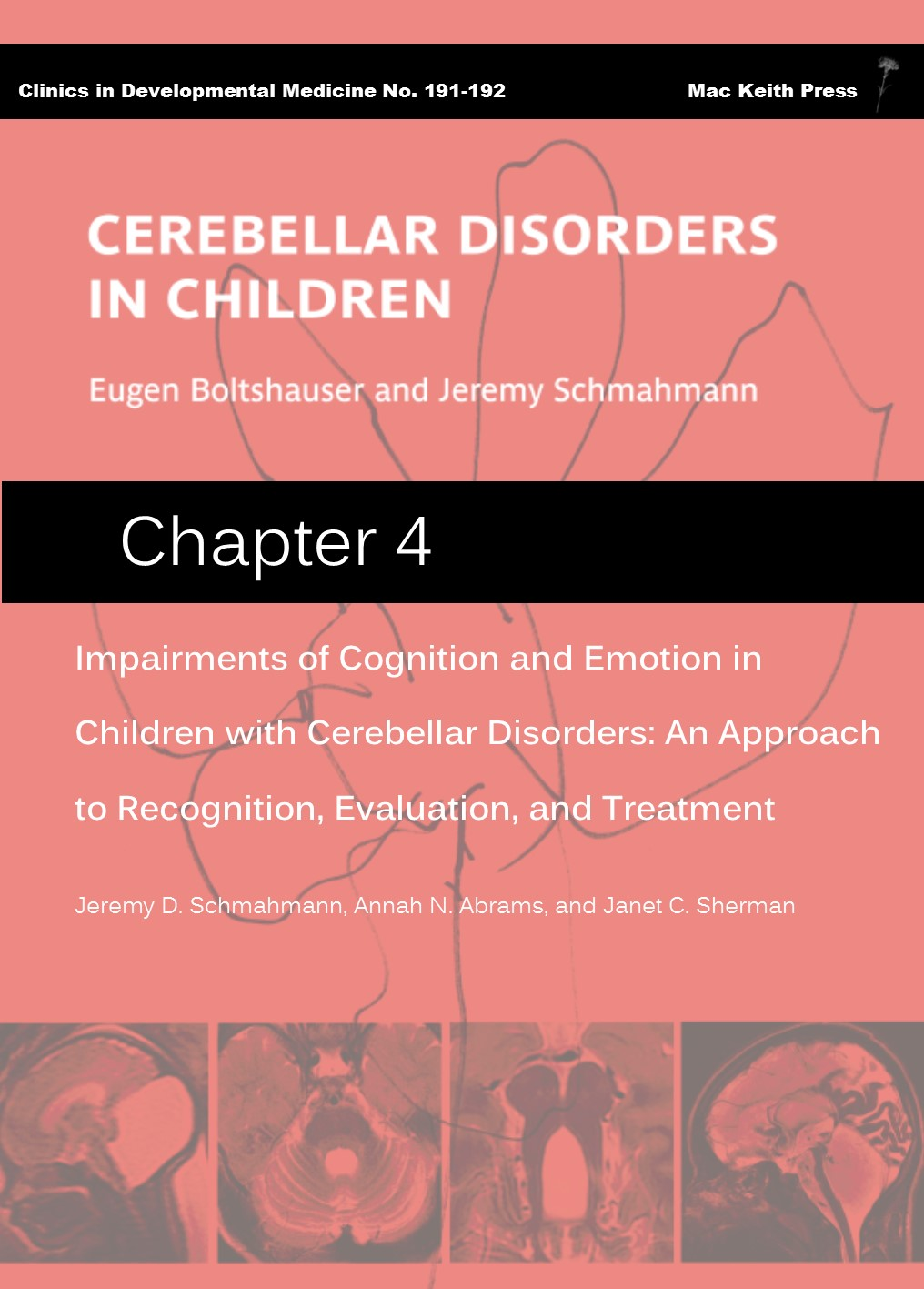 Impairments of Cognition and Emotion in Children with Cerebellar Disorders: An Approach to Recognition, Evaluation and Treatment - Cerebellar Disorders in Children (Chapter 4) COVER IMAGE