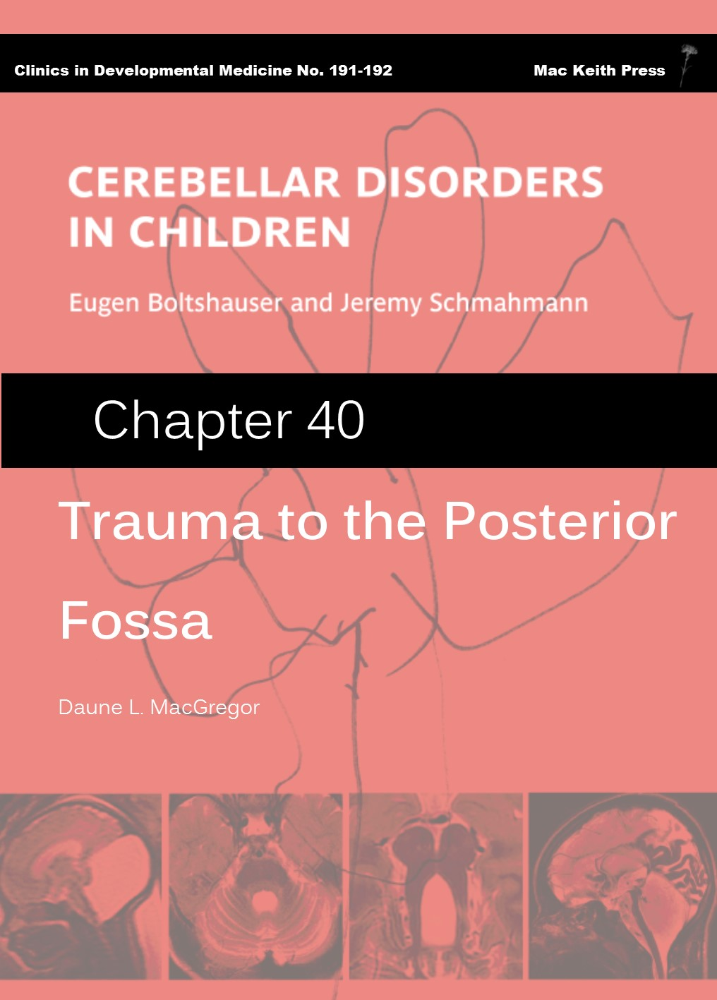 Trauma to the Posterior Fossa - Cerebellar Disorders in Children (Chapter 40) COVER