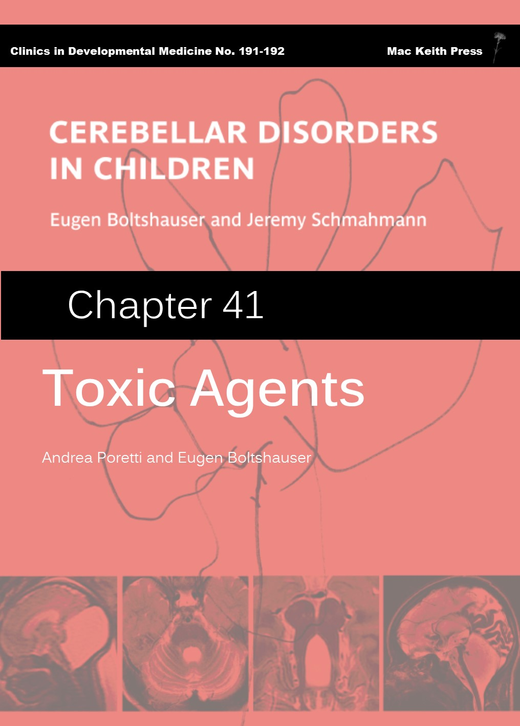 Toxic Agents - Cerebellar Disorders in Children (Chapter 41) COVER