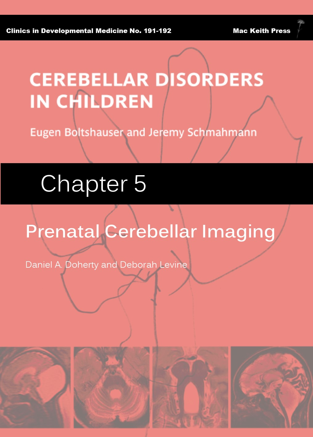 Prenatal Cerebellar Imaging  - Cerebellar Disorders in Children (Chapter 5) COVER IMAGE