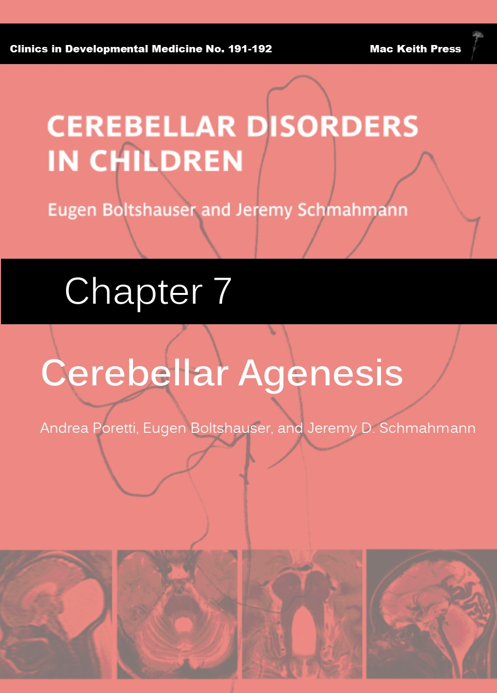 Cerebellar Agenesis - Cerebellar Disorders in Children (Chapter 7) COVER IMAGE