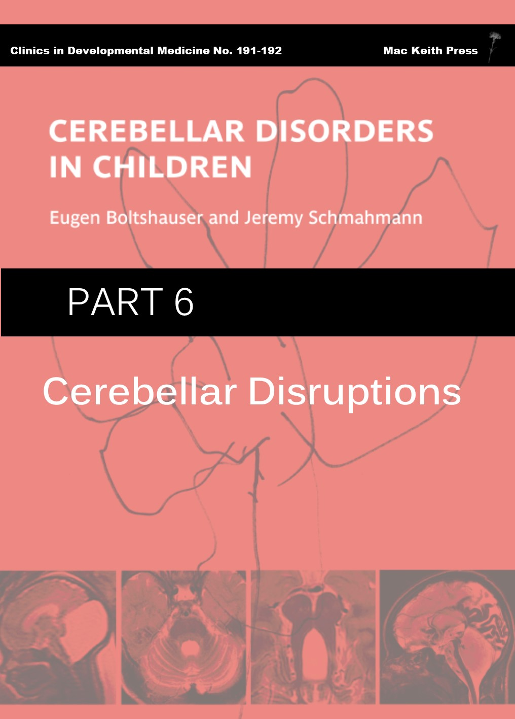 Cerebellar Disorders in Children - Part 6: Cerebellar Disruptions COVER