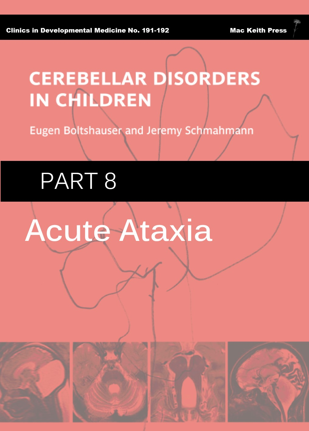 Cerebellar Disorders in Children - Part 8: Acute Ataxia COVER