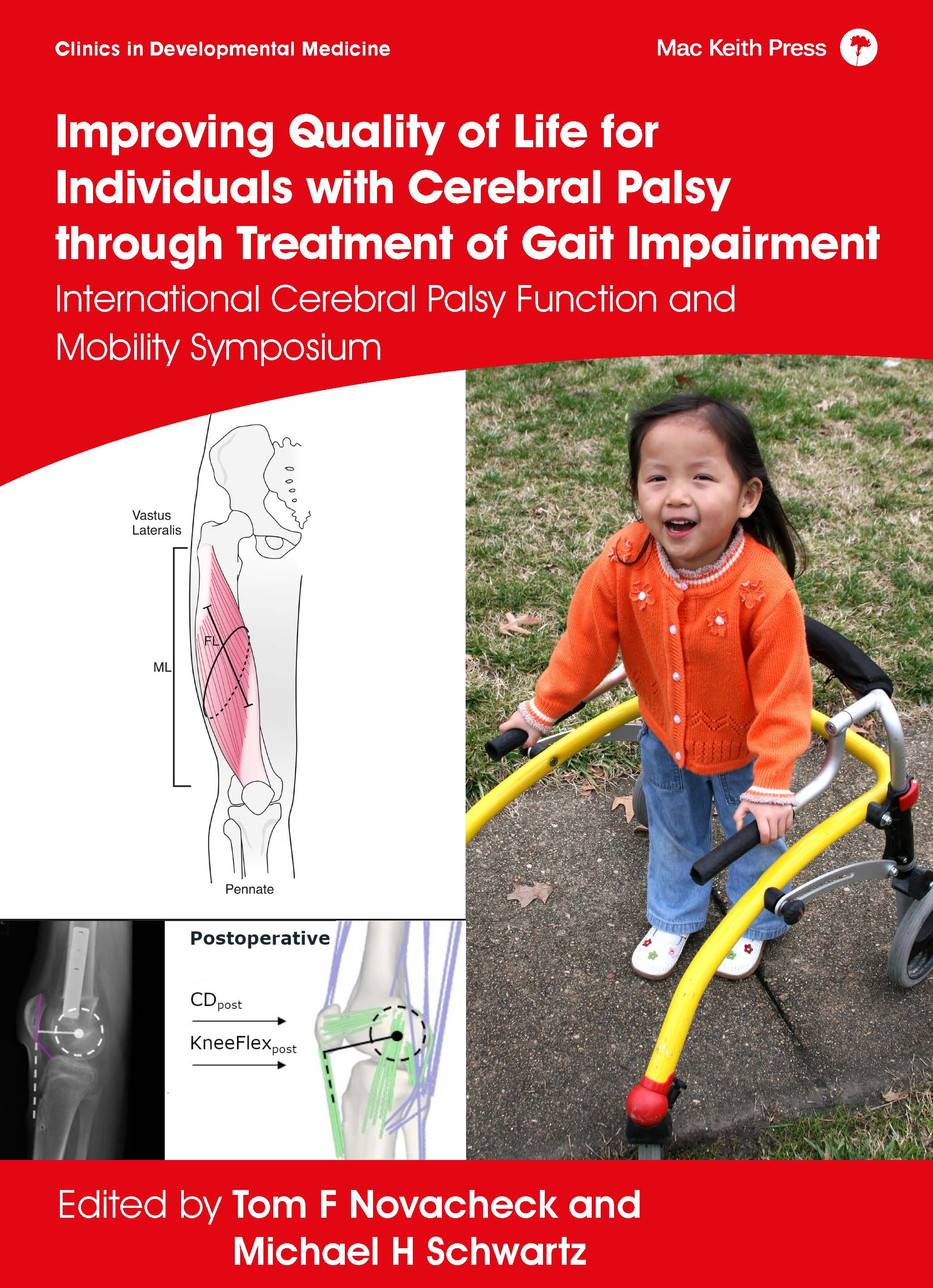 Improving Quality of Life for Individuals with Cerebral Palsy through Treatment of Gait Impairment, Novacheck & Schwartz