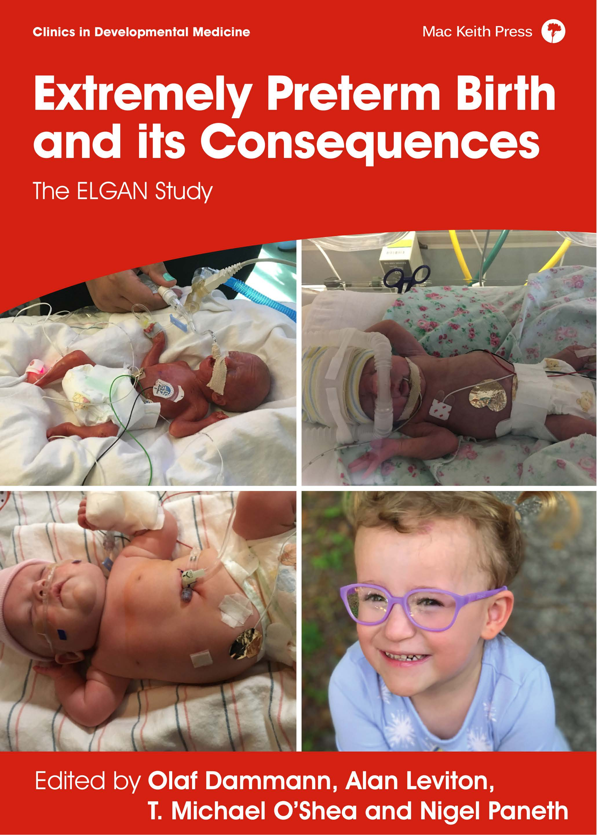 Damman, Extremely Preterm Birth and its Consequences, ELGAN