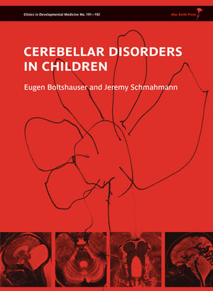Boltshauser Cerebellar Disorders in Children