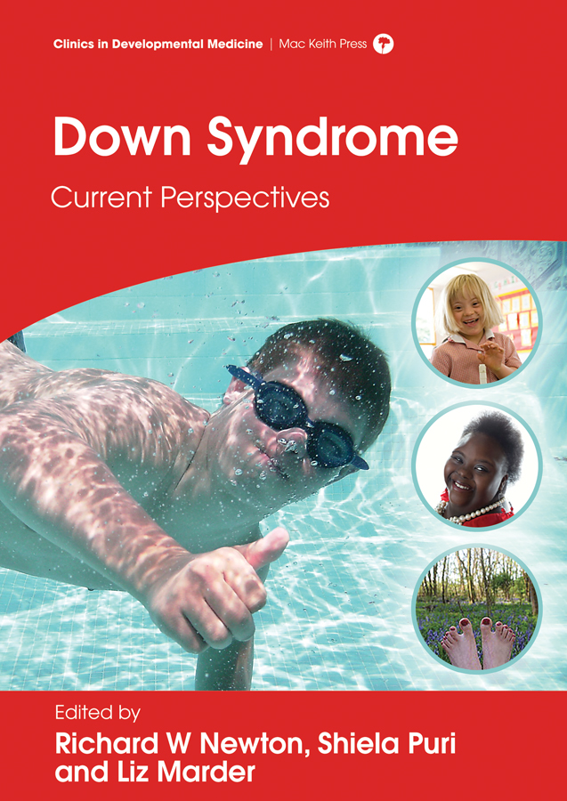 Front cover of Newton: Down Syndrome