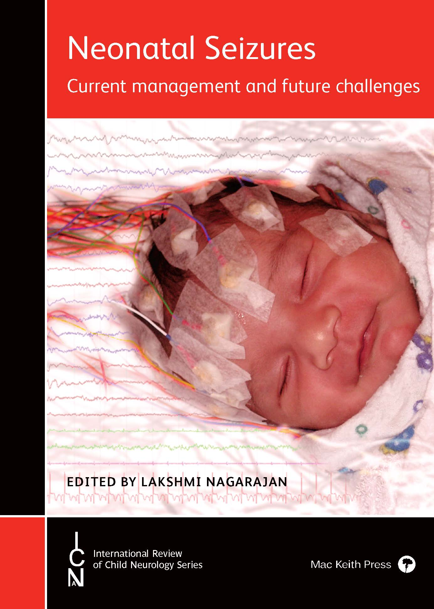 Neonatal Seizures- book cover