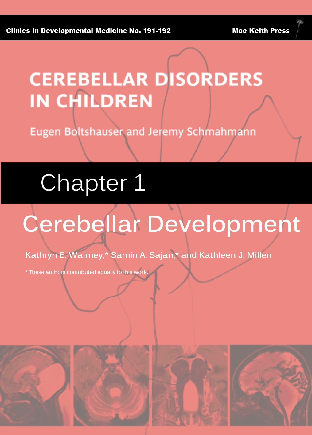 Cerebellar Disorders in Children Chapter 1 cover