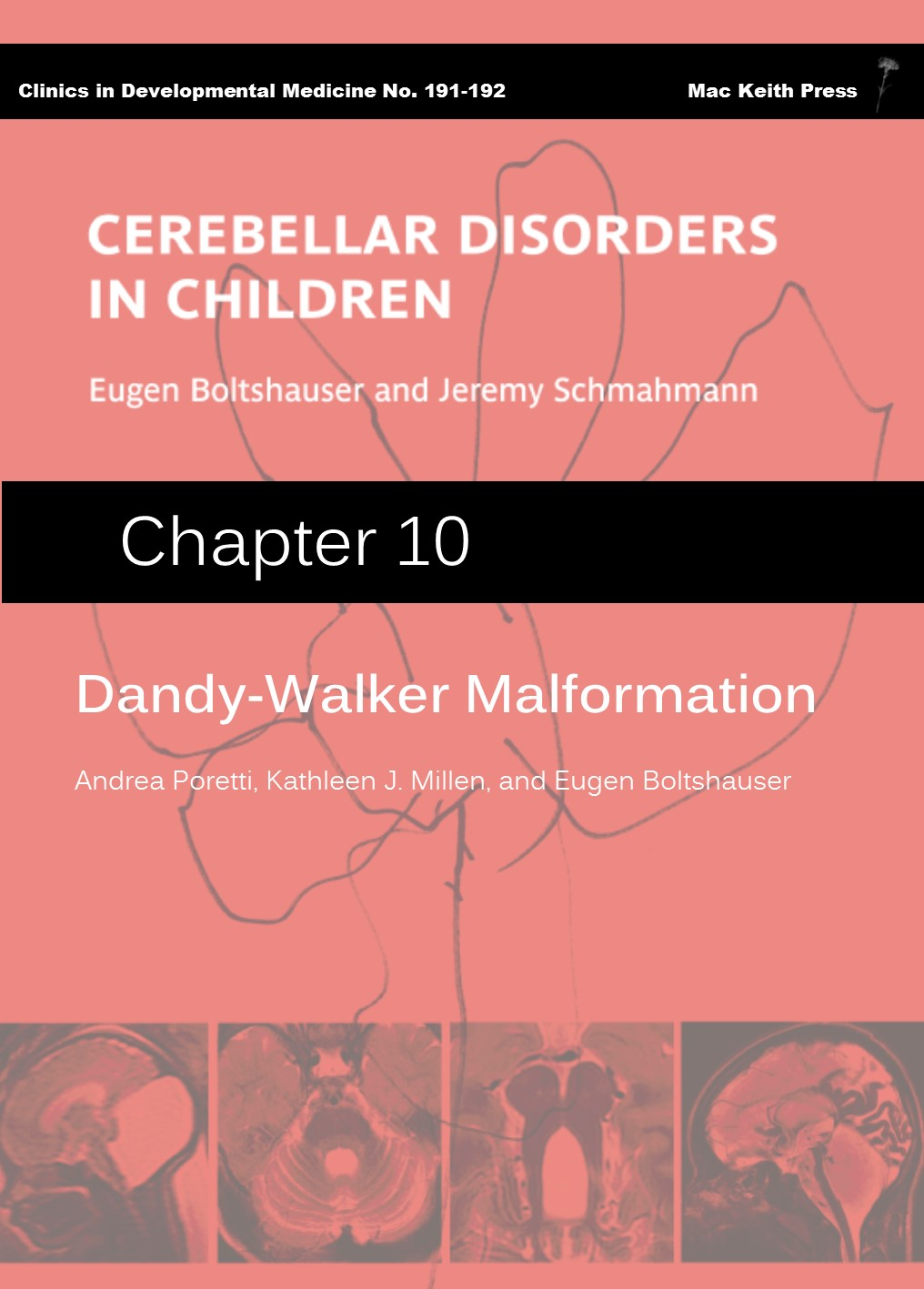 Dandy-Walker Malformation - Cerebellar Disorders in Children (Chapter 10) COVER