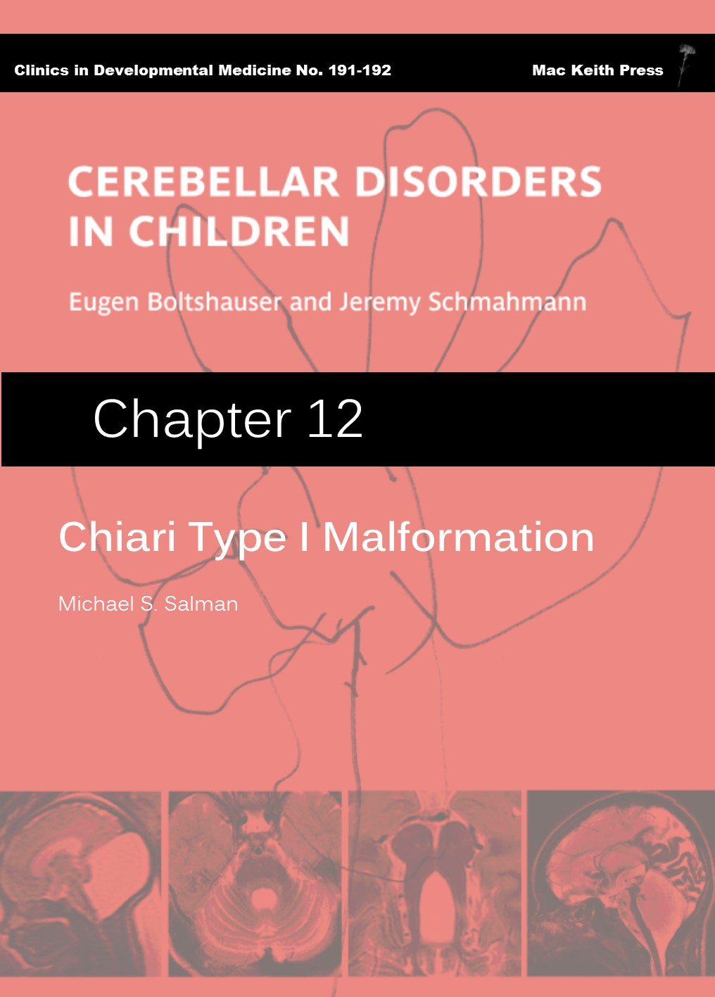 Chiari Type I Malformation - Cerebellar Disorders in Children (Chapter 12) COVER