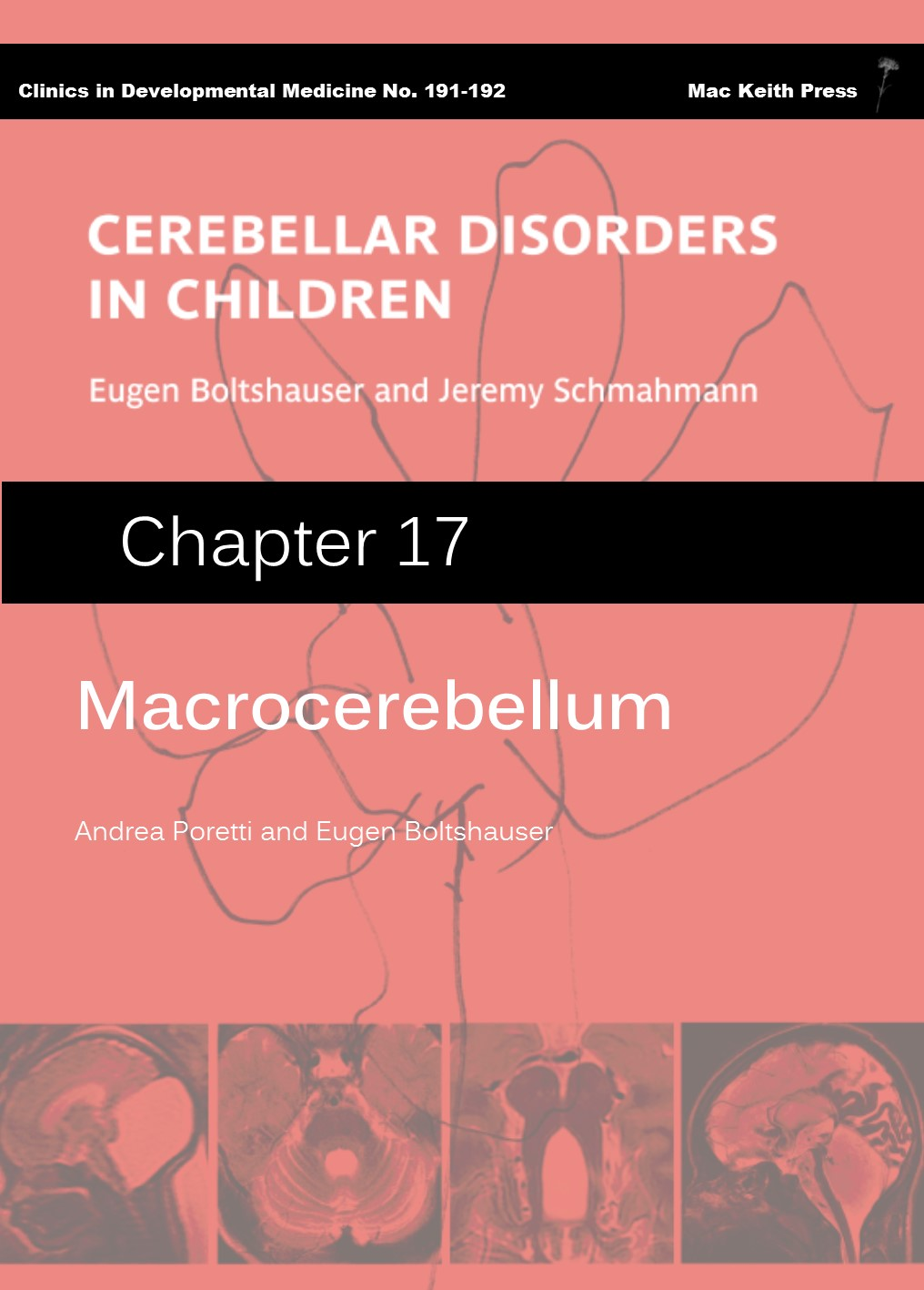 Macrocerebellum - Cerebellar Disorders in Children (Chapter 17) COVER