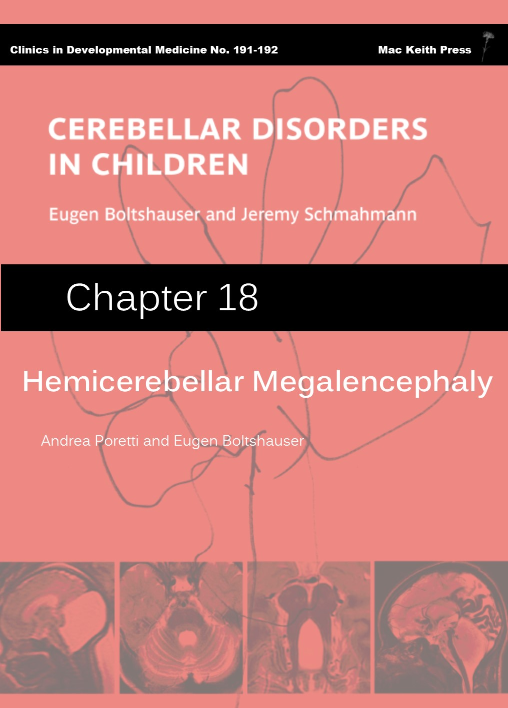 Hemicerebellar Megalencephaly- Cerebellar Disorders in Children (Chapter 18) COVER