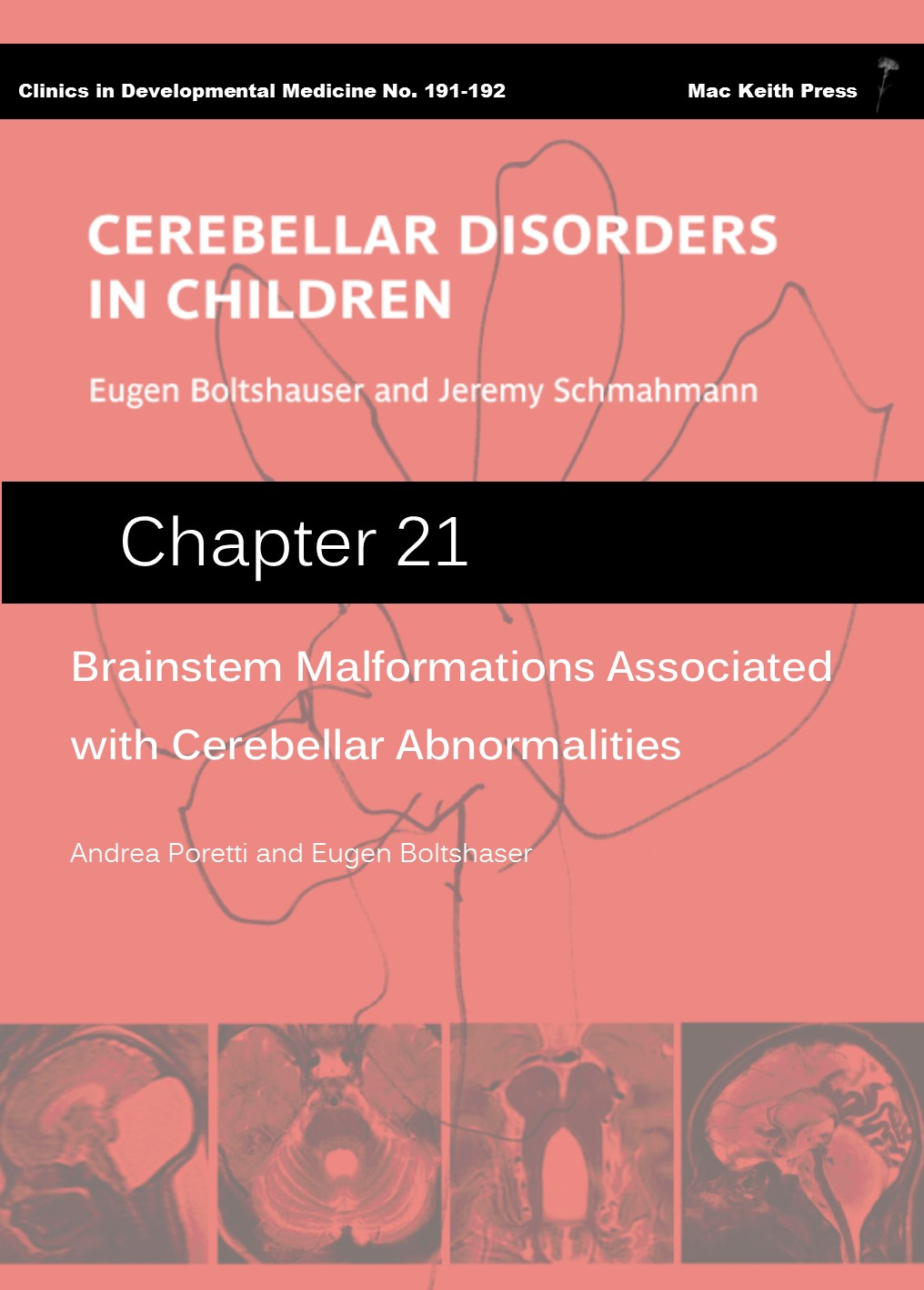 Brainstem Malformations Associated with Cerebellar Abnormalities- Cerebellar Disorders in Children (Chapter 21) COVER