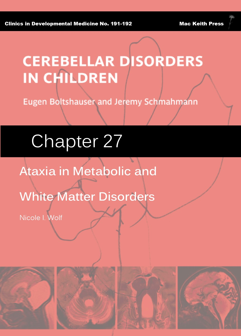 Ataxia in Metabolic and White Matter Disorders - Cerebellar Disorders in Children (Chapter 27) COVER