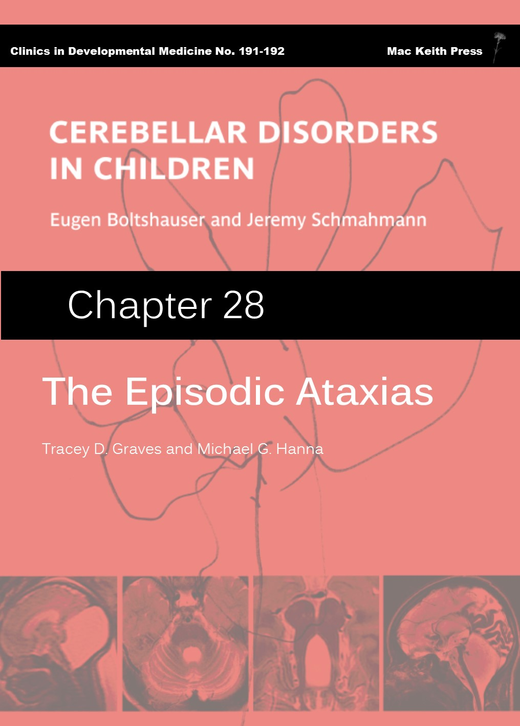 The Episodic Ataxias - Cerebellar Disorders in Children (Chapter 28) COVER