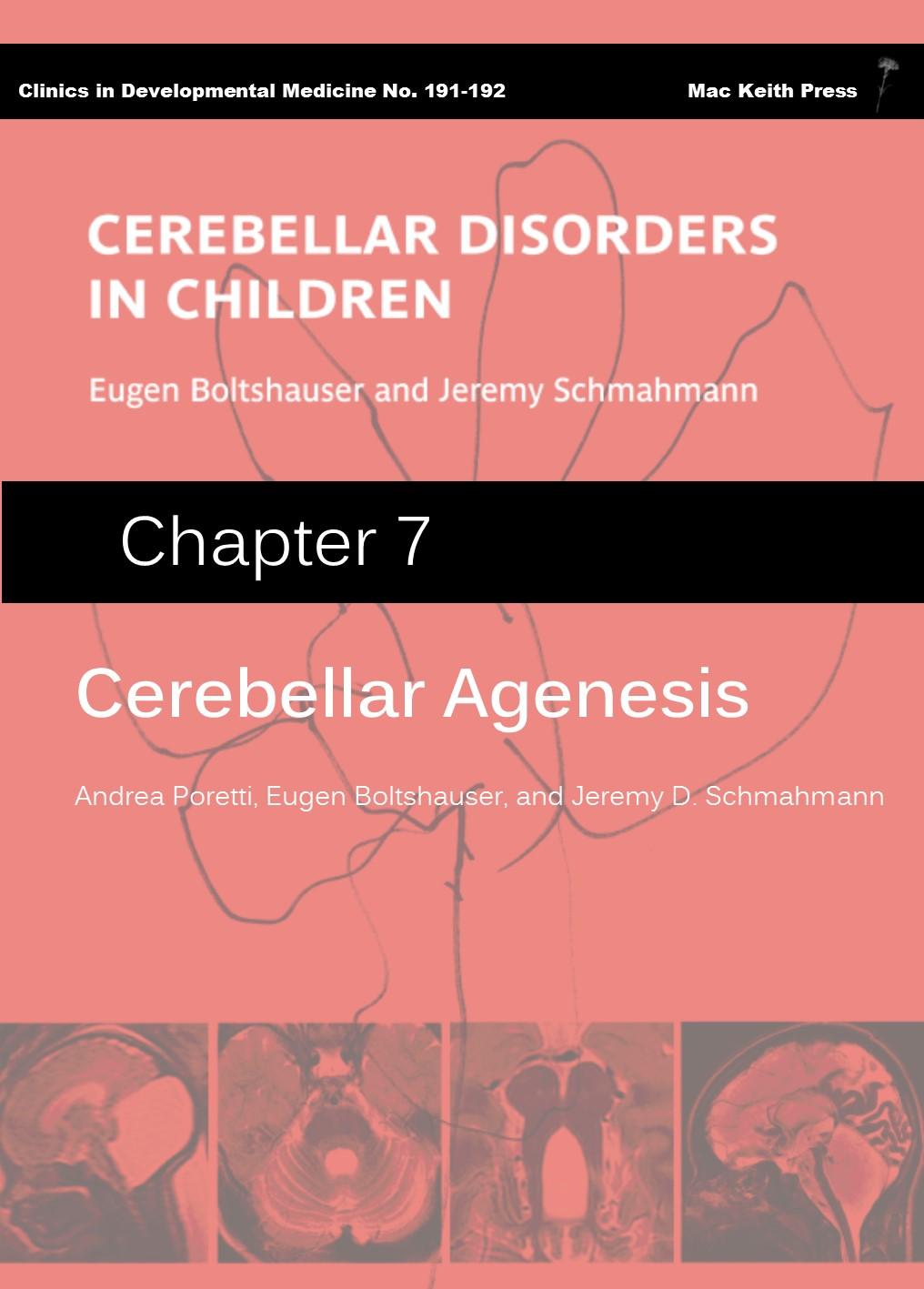 Cerebellar Agenesis - Cerebellar Disorders in Children (Chapter 7) COVER IMAGE