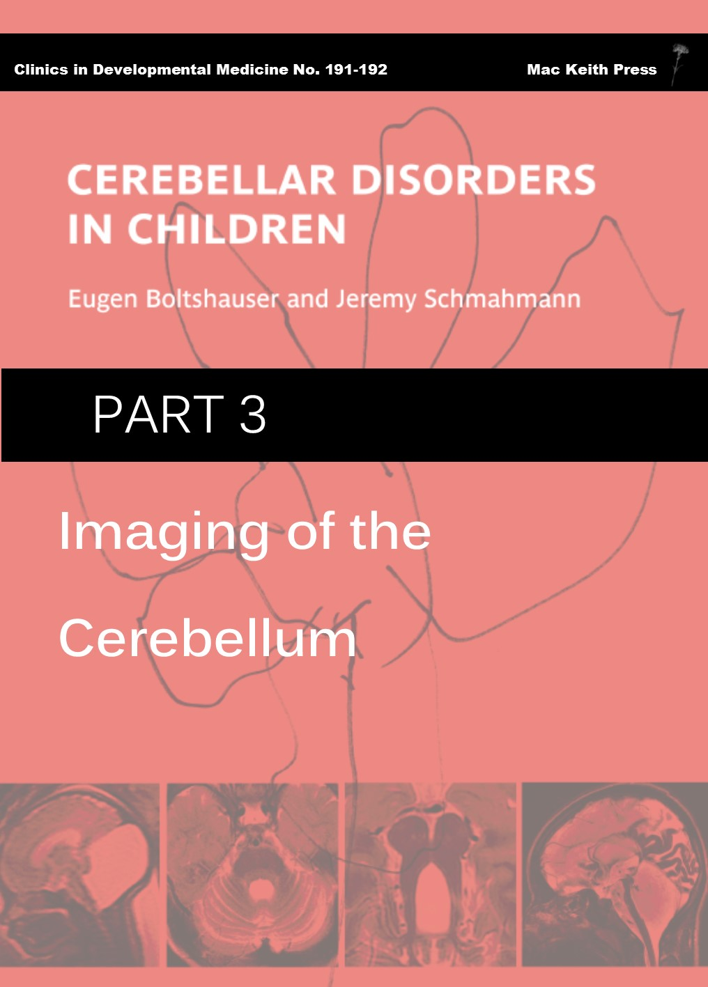 Cerebellar Disorders in Children - Part 3: Imaging of the Cerebellum COVER