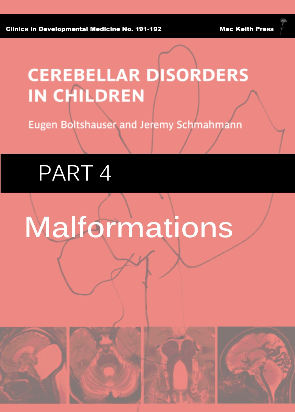 Cerebellar Disorders in Children - Part 4 Malformations COVER
